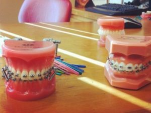 3 Factors to Consider While Bracing for Braces
