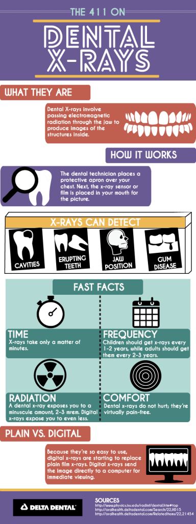 The Facts About Dental X-rays